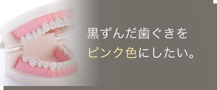 黒ずんだ歯ぐきをピンク色にしたい。